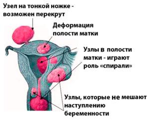 Миома, жидкость в миоматозном узле