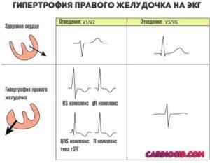 Возможна гипертрофия правого желудочка. Пульс 144