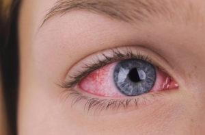 Уже три года краснеет половина глаза