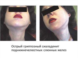 Воспаление подчелюстной слюнной железы