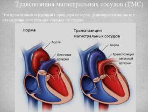 Диаметр легочной артерии меньше диаметра аорты