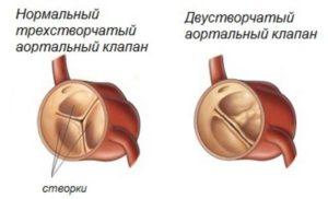 ВПС Двустворчатый аортальный клапан