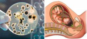 Можно ли, при наличии трихомонадной инфекции забеременеть?