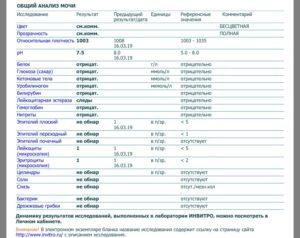 Частое обильное мочеиспускание, кетоны в моче, повышен ТТГ