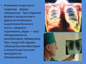 Возможно ли отличить туберкулез от лимфомы