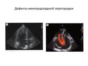 Дефект межпредсердной перегородки у новорожденного