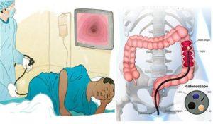 Можно ли делать колоноскопию через неделю после ирригоскопии?