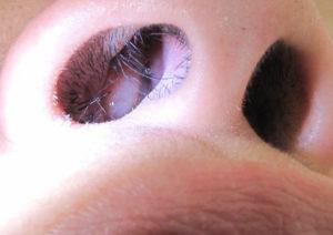 Красная плотная шишка в носовой перегородке