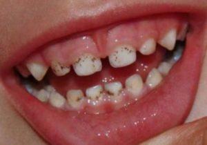 Черный налет на зубах подростка