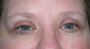 Дергается мышца под левым глазом