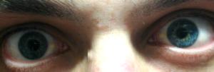 На левом глазу появилось белое пятно. Что это?