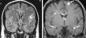 Врач на МРТ сказал, что это рассеянный склероз