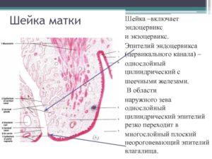 Выраженная складчатость эндоцервикса