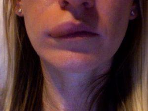 Мурашки на лице, онемение губы