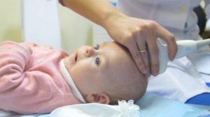 Узи головы ребенка 3 месяца