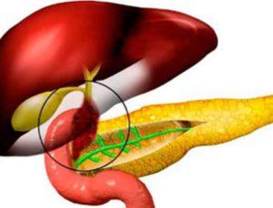 Дискинезия желчного пузыря и хронический холецистит
