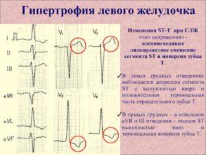 Можно ли при гипотрофии левого желудочка принимать Конкор