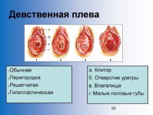 Дефлорация без крови