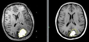МРТ и менингиома