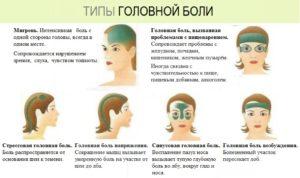 Частые головные боли в лобной области в весках