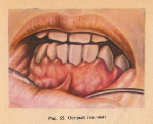 Воспаление в ротовой полости