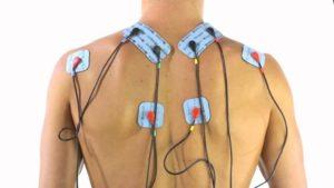 Электростимуляция мышц спины