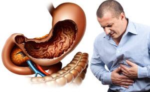 Диарея с болью, расстройство кишечника, проблема жкт