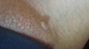 Молочница, зуд и сухость, шишка или прыщ на большой половой губе