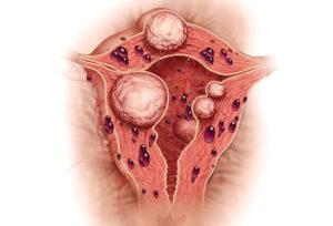 Эндометриоз и длительные кровотечения
