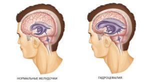 МР картина умеренно выраженной наружной гидроцефалии и точечная боль справа