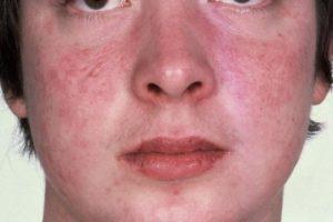 Возможна ли сильная сыпь на лице при приеме еутирокса?