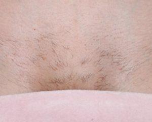 Волосики на лобке дочери 5 месяцев