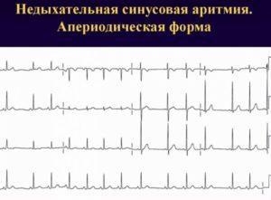 Выраженная Синусовая аритмия, вегето сосудистая дистония