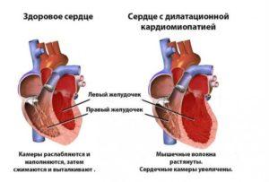Дилатационная кардиомиопатия, нарушение ритма. Армия