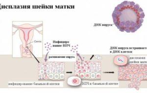 Дисплазия, CIN2, ВПЧ, Воспаление
