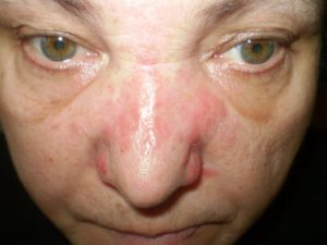 Через 7 дней после удара нос болит и отекает