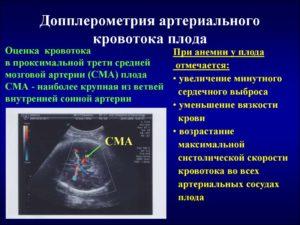 Нарушения кровотока 1а. Низкорезистентный кровоток в СМА