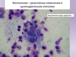 Воспаление с реактивными изменениями эпителия