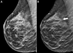 Может ли быть боль в молочной железе после маммографии?