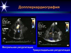Минимальная - небольшая трикуспидальная регургитация