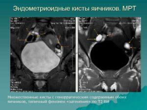 Эндометриоидные кисты обоих яичников, рецидив