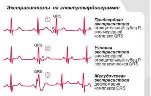 Экстрасистолы и перебои в сердце