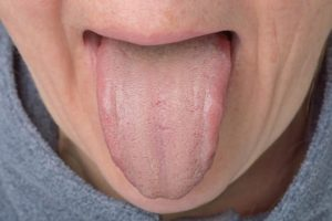 Налет на языке