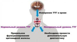 Набор веса при низком ТТГ