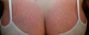 Что делать при розтяжках на груди в возрасте 14 лет?