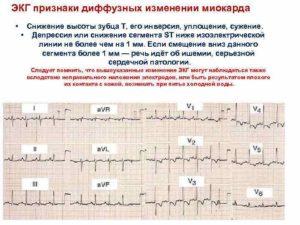 ЭКГ - изменение миокарда, снижение кровоснабжения в передне-септальной области. Опасно?