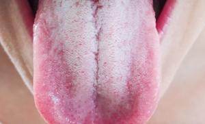 Дисбактериоз налет на языке