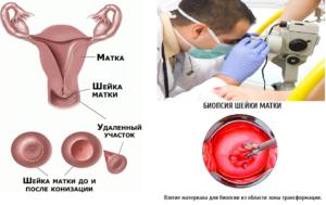 Восстановление после биопсии шейки матки