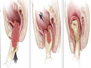 Влагалище после родов