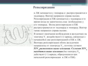 Нарушение процессов реполяризации ЛЖ, ВДСУ